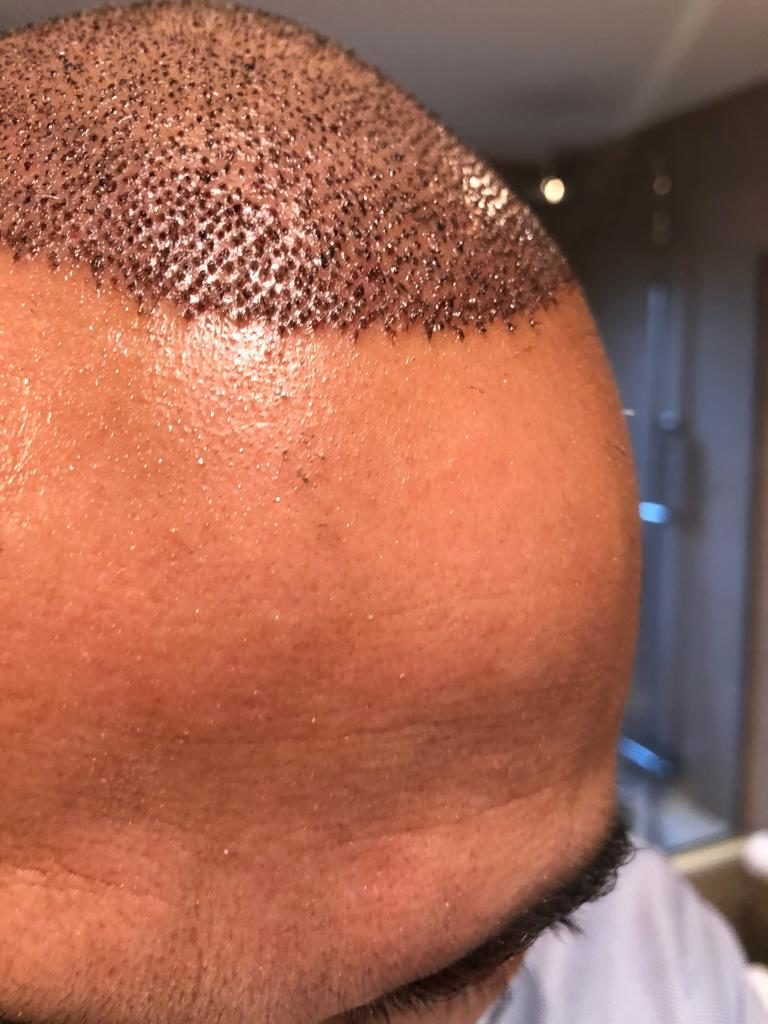 Implante capilar: Preguntas frecuentes