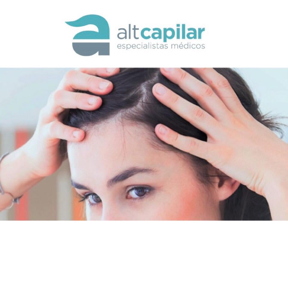 Alopecia androgenética femenina